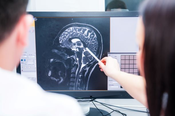 doctors looking at image of a brain scan